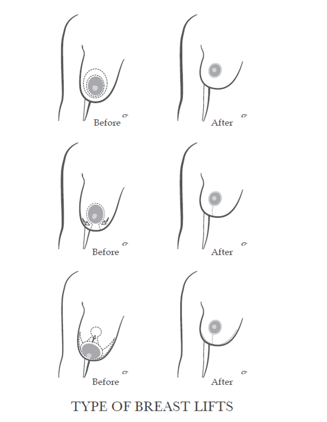 Types of scars for breast lift